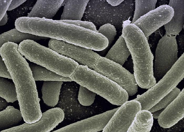 Бактериальная инфекция.